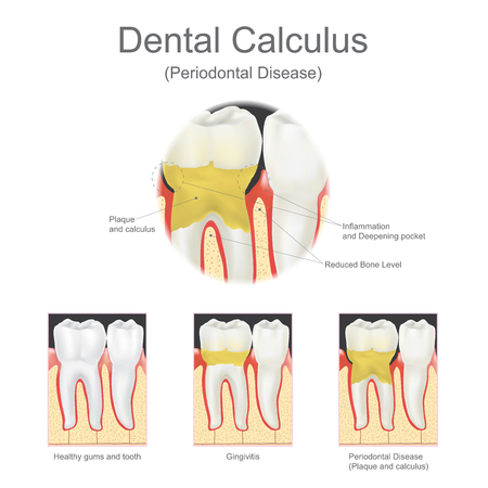 Dental calculus is the calcified plaque, or tartar, that is removed with a dental scalar during regular dentist visits. Vector graphic. Illustration