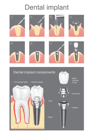 Dental implant is an artificial tooth root that is placed into your jaw to hold a replacement tooth or bridge. Dental implants may be an option for people who have lost a tooth or teeth due to periodontal disease, an injury, or some other reason. Vector g Ilustração