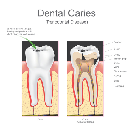Dental caries is the scientific term for tooth decay or cavities. It is caused by specific types of bacteria. They produce acid that destroys the tooth's enamel and the layer under it, the dentin. Vector graphic design.