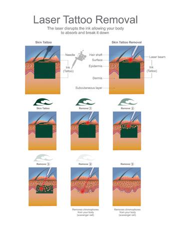 Tatoeage verwijderen wordt meestal uitgevoerd met behulp van lasers die de inktdeeltjes in de tatoeage afbreken. Onderwijs infographic. Vector ontwerp.