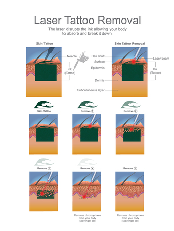 Tattooentfernung wird am häufigsten mit Lasern durchgeführt, die die Tintenpartikel in der Tätowierung brechen. Bildung infografisch. Vektor-Design.