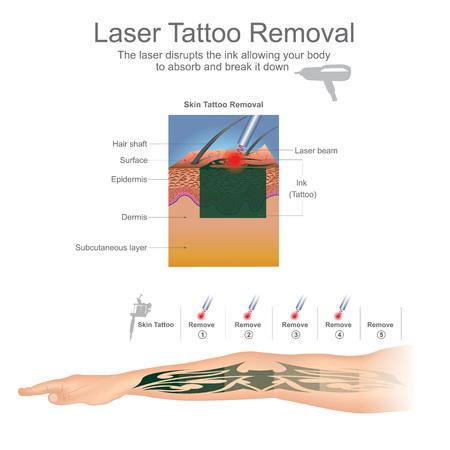 문신 제거는 문신에서 잉크 입자를 분해하는 레이저를 사용하여 가장 일반적으로 수행됩니다. 교육 infographic. 벡터 디자인입니다.