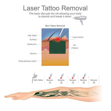 Tattoo removal is most commonly performed using lasers that break down the ink particles in the tattoo. Education infographic. Vector design.