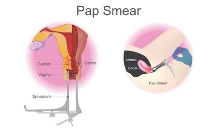 Le frottis de Papanicolaou est une procédure de dépistage du cancer du col de l'utérus. Graphique d'information sur l'éducation. Conception vectorielle.