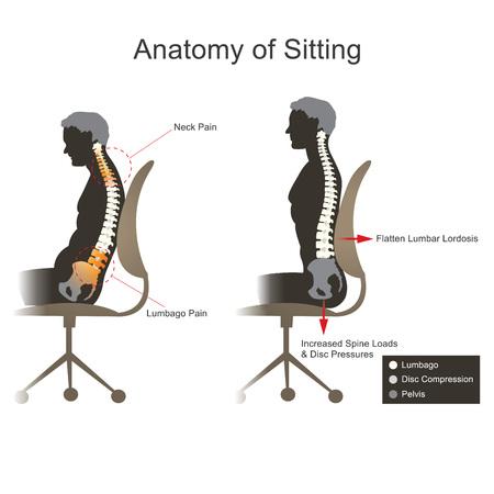 La ciática es una condición médica caracterizada por el dolor que va abajo de la pierna de la parte posteriora más baja.