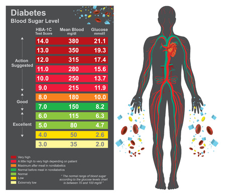Diabetes chart. Symptoms of high blood sugar include frequent urination, increased thirst, and increased hunger. Education info graphic. Vector design. Banco de Imagens - 80838230