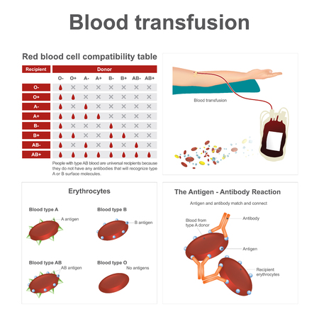 when: There are two special blood types when it comes to blood transfusions. Info graphic vector.