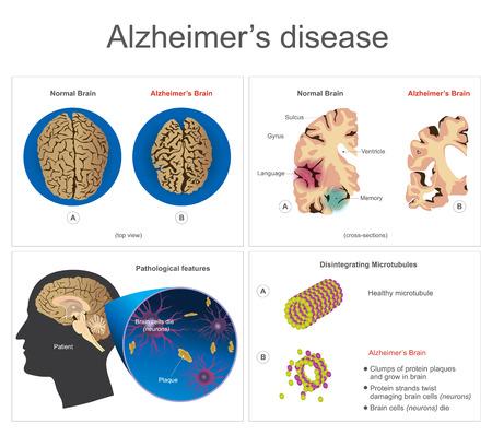 shrinkage: Brain disease illustration. Illustration