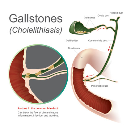 A stone in the common bile duct, gallstones can block the flow of bile and cause inflammation infection and jaundice, Info graphic Vector. Ilustração
