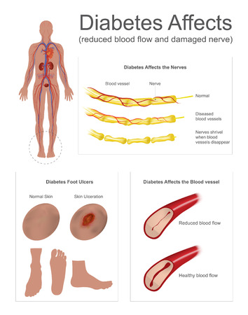 Effects of diabetes illustration.