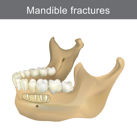 Mandible fractures is the largest, strongest and lowest bone in the face. Part of human body. Infographic Anatomy.