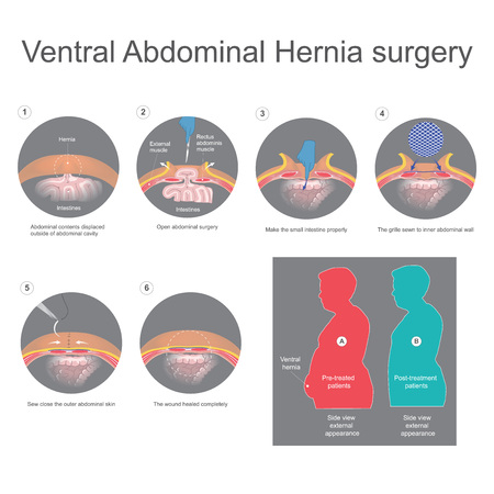 Ventrale Hernia Stock Illustratie