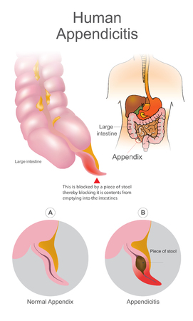 Human Appendicitis. A blocked by a piece of stool thereby blocking it is contents from emptying into intestines. Large Intestine system. Illustration human body parts.