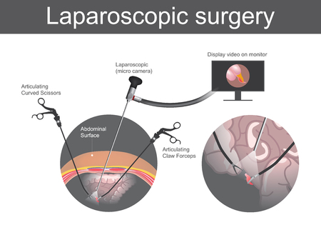 Laparoscopic surgery. Technical surgery which operations are performed far from their location through small incisions in abdominal surface or the body. Large Intestine system. Illustration human body parts.