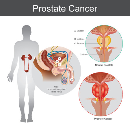 The Prostate cancer is the most common cancer among men not skin cancer. The Prostate cancer that starts in the prostate gland, which is a walnut sized gland at the base of the bladder in old men. Illustration anatomy body part.