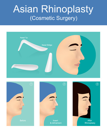 Rhinoplasty is a  plastic surgery creates a aesthetic and facially proportionate nose for correcting or other problems that affect breathing. Illustration vector. Stock Illustratie