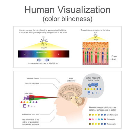 Human can see the color from wavelength of lightThe destruction of the retina or perception in the brain abnormal