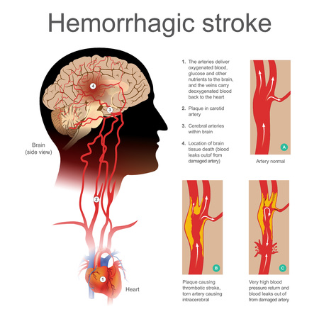 Illustration Hemorrhagic stroke Stok Fotoğraf - 90880130