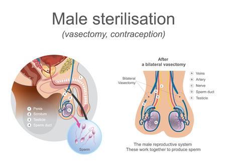 수컷 생식계는 이들을 함께 사용하여 정자를 생산합니다. 계란과 정자가 만날 수 없도록 튜브를 자르거나 막으십시오. 삽화.