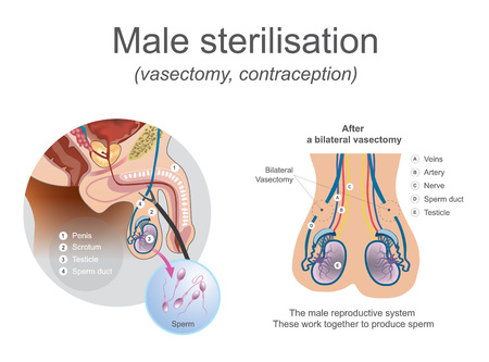 The male reproductive system these work together to produce sperm. Cut or block the tubes so that egg and sperm cannot meet. Illustration. Illustration