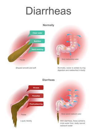 Normaal wordt water toegevoegd tijdens de spijsvertering en opnieuw opgenomen in het lichaam. Met diarree kan het lichaam geen water opnemen. Illustratie dikke darm.