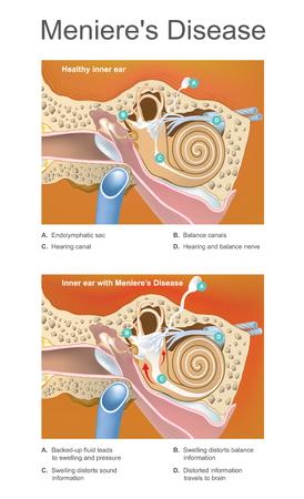 Stoornis van het binnenoor die het gehoor en evenwicht in verschillende mate kan beïnvloeden. Vector Illustratie