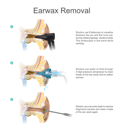 Doctors use water or fluid through a high pressure compressor to clean inside of the ear canal. And to soften earwax. Illustration.