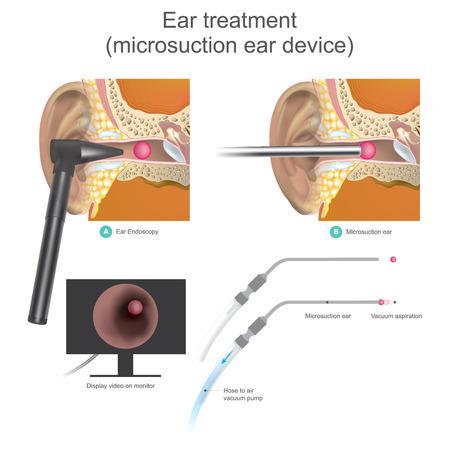 Micro 흡입 장치 진공 작동 시스템입니다. 의사는 공기 진공 펌프를 사용하여 외이도 내에서 공 모양을 흡입합니다. 삽화. 스톡 콘텐츠 - 92951449