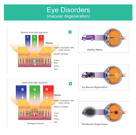 Ilustracja zwyrodnienia plamki żółtej, stan chorobowy, który może powodować niewyraźne widzenie lub jego brak. Na początku często nie występują żadne objawy. Jednak z biegiem czasu niektórzy ludzie doświadczają stopniowego pogorszenia widzenia, które może wpływać na jedno lub oba oczy.