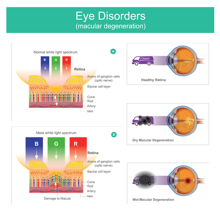 Macular degeneration illustration, a medical condition which may result in blurred or no vision, Early on there are often no symptoms. Over time, however, some people experience a gradual worsening of vision that may affect one or both eyes.