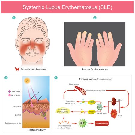 The patients skin inflammation from the light. Illustration.Because of loss of tolerance to self leads to immune system mediated damage to selfThe body cannot produce normal immunity. Illustration