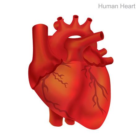 Menschliches Herz, zu isolieren. Angioplastie ist ein endovaskuläres Verfahren zur Erweiterung verengter oder verstopfter Arterien oder Venen, typischerweise zur Behandlung von arterieller Arteriosklerose.