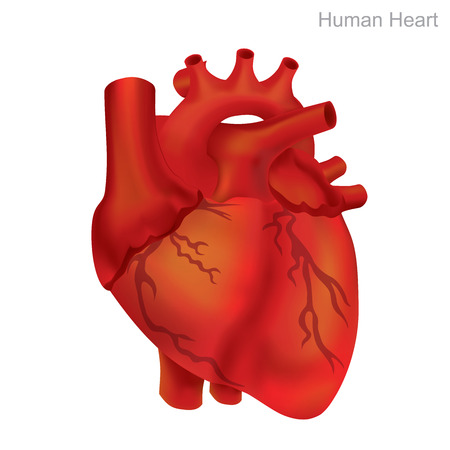Human heart, isolate. Angioplasty is an endovascular procedure to widen narrowed or obstructed arteries or veins, typically to treat arterial atherosclerosis.
