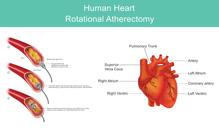 Atherectomy is a procedure which is performed to remove atherosclerotic plaque from diseased arteries. Atherosclerotic plaques are localized in either coronary. Vector illustration. Illustration