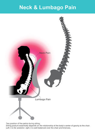 The lumbar region is sometimes referred to as the lower spine, or as an area of the back in its proximity. Banco de Imagens - 98074055