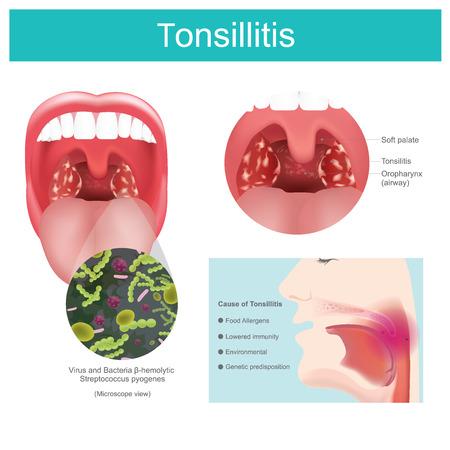 Entzündung des Weichgewebes im Mund und Schmerzen beim Schlucken auftreten. Verursacht durch eine bakterielle Streptokokkeninfektion, einschließlich einiger Viren, die Rötungen und Schwellungen im Hals und in den Mandeln verursachen. Schmerzen beim Schlucken. Illustration.