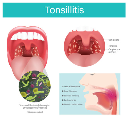 Inflammation of the soft tissue in the mouth and pain in swallowing occurs. Caused by streptococcus bacterial infection including some viruses that causes redness and swelling in the throat and tonsils Pain in swallowing. Illustration.