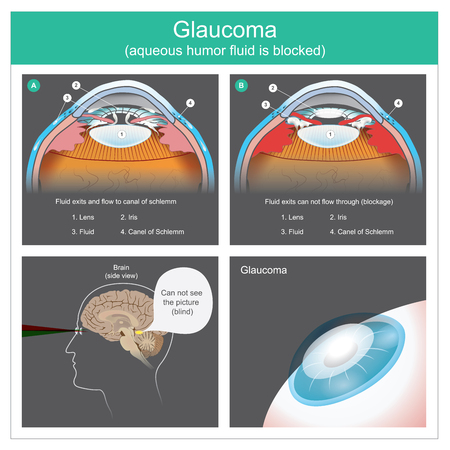 Aqueous humour fluid exits and flow to canal of schlemm human eyes. To see difficult the picture because the fluid exits can not flow through,consequences of obscure visibility of human eye lens. Illustration.