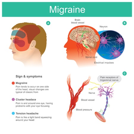 Migraine. Headache, pain, tend cooccur on one side of the headPressured blood vessels reduce blood flow for brain. Illustration.