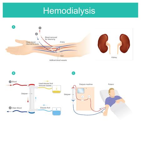 Tratamiento de pacientes con enfermedad renal crónica. Máquina de hemodiálisis utilizada para filtrar y eliminar los desechos que se acumulan en la sangre. Ayuda a equilibrar el cuerpo de los pacientes renales en la condición más normal, mientras que los riñones ya no pueden funcionar para filtrar los desechos. Ilustración de vector