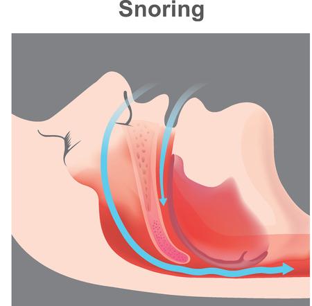 Schnarchen ist die Vibration der Atemstrukturen und das daraus resultierende Geräusch aufgrund einer behinderten Luftbewegung während des Atmens während des Schlafens. Standard-Bild - 103413230