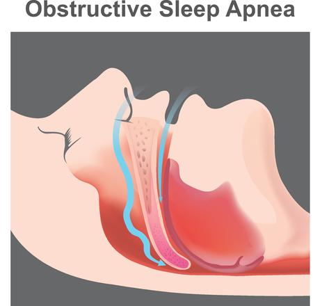Chrapanie to drgania struktur oddechowych i dźwięk wynikający z utrudnionego ruchu powietrza podczas oddychania podczas snu.