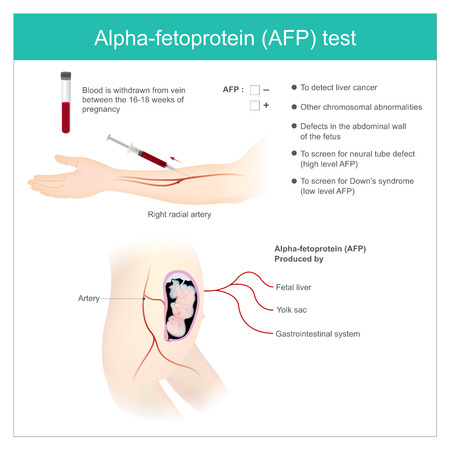 Alpha-fetoprotein (AFP) test. Use Analysis by AFP level. to detect liver cancer, and use to screen for down's syndrome. 向量圖像