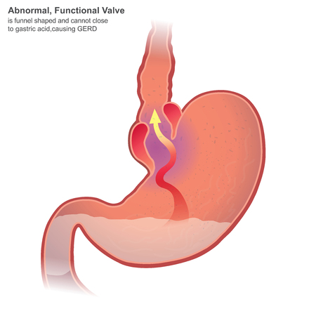 Gastroesophageal reflux disease GERD, also known as acid reflux, is a long term condition where stomach contents come back up into the esophagus resulting in either symptoms or complications.