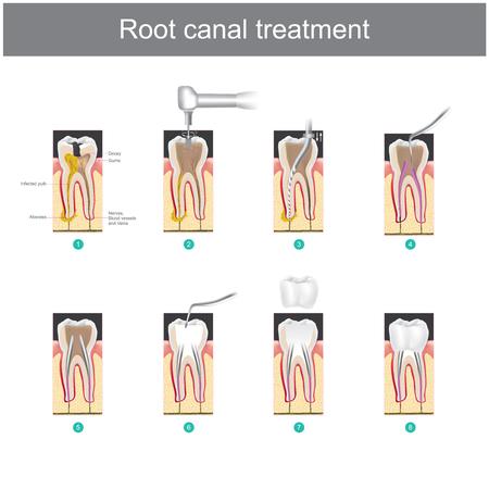 Tratamiento de conducto. Cómo tratar nuestros dientes después de que el diente está dañado. o caries severa como causa de infección o inflamación Ilustración de vector