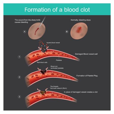 La herida del cuchillo afilado en la piel sangra ligeramente, el cuerpo puede responder para detener el flujo de sangre de los capilares y antibacteriano a través del cuerpo.