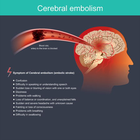 It occurs when a particle from a part of the body travels through the bloodstream to the brain and blocks the blood flow within an artery of the brain.