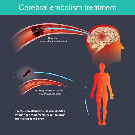 Ejemplo de dispositivo médico pequeño que se inserta a través de la arteria femoral en la ingle y viaja al cerebro.
