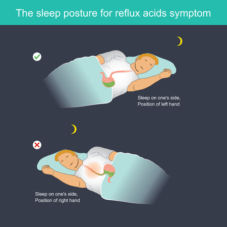 When sleeping, Stomach acid can flow back to the oesophagus, causing a burning sensation in chest centre and other symptoms.