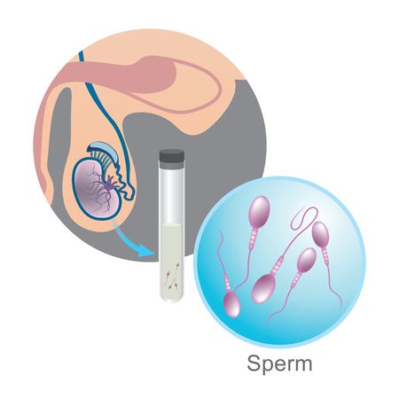 In vitro fertilization, Sperm Illustration. Education infographic vector.